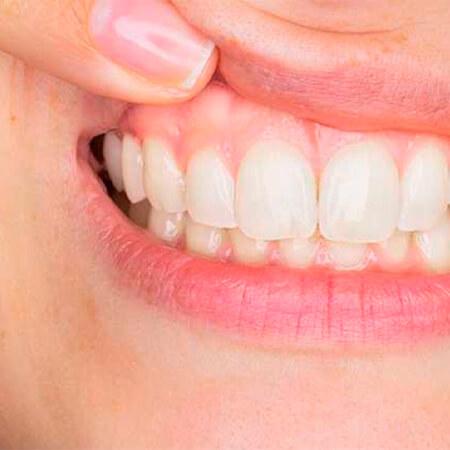 Limpador ultrassônico de dentes SMILY